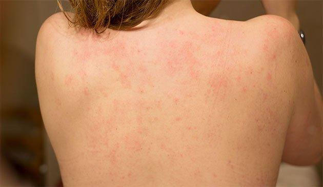 mycose peau seche