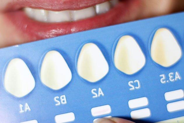 nuance teinte dents